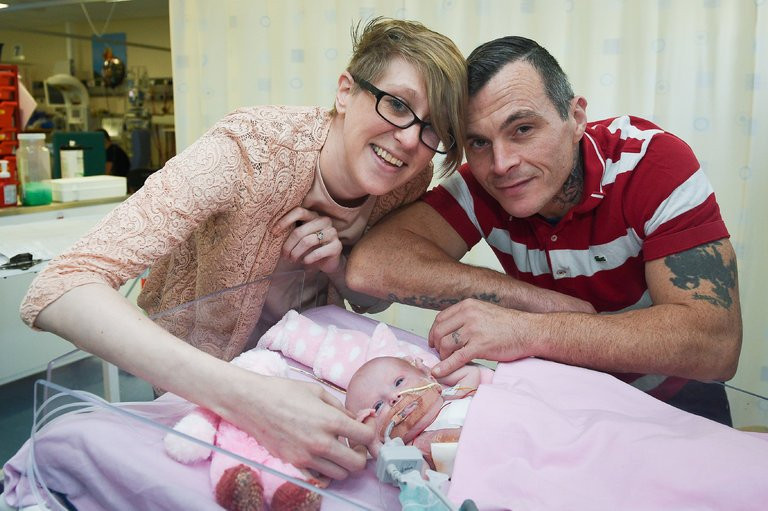 Baby Born With Heart Outside Her Body
